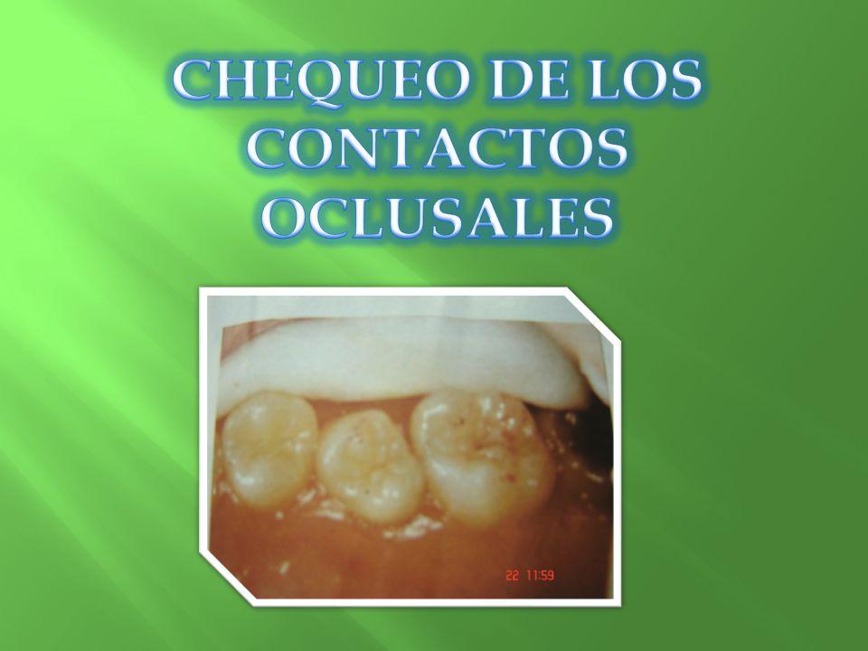 CHEQUEO DE LOS CONTACTOS OCLUSALES
