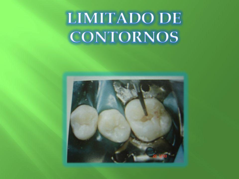 LIMITADO DE CONTORNOS