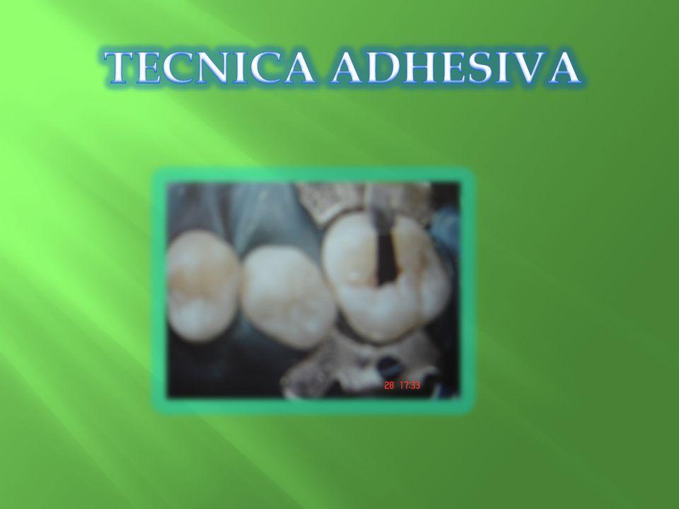 TECNICA ADHESIVA