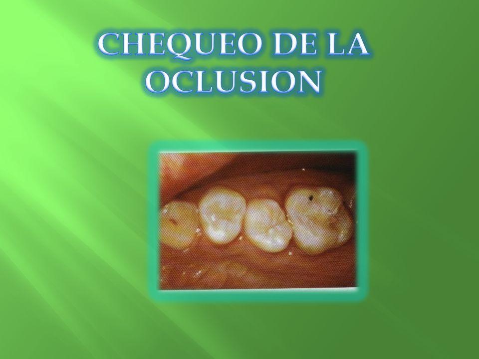 CHEQUEO DE LA OCLUSION