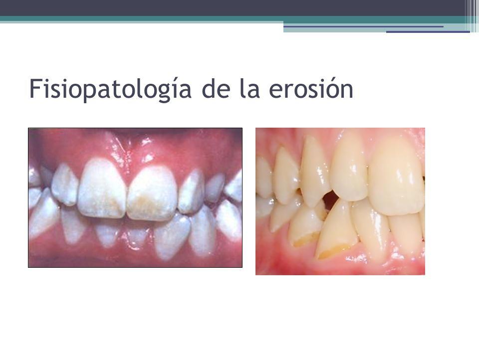 Fisiopatología de la erosión