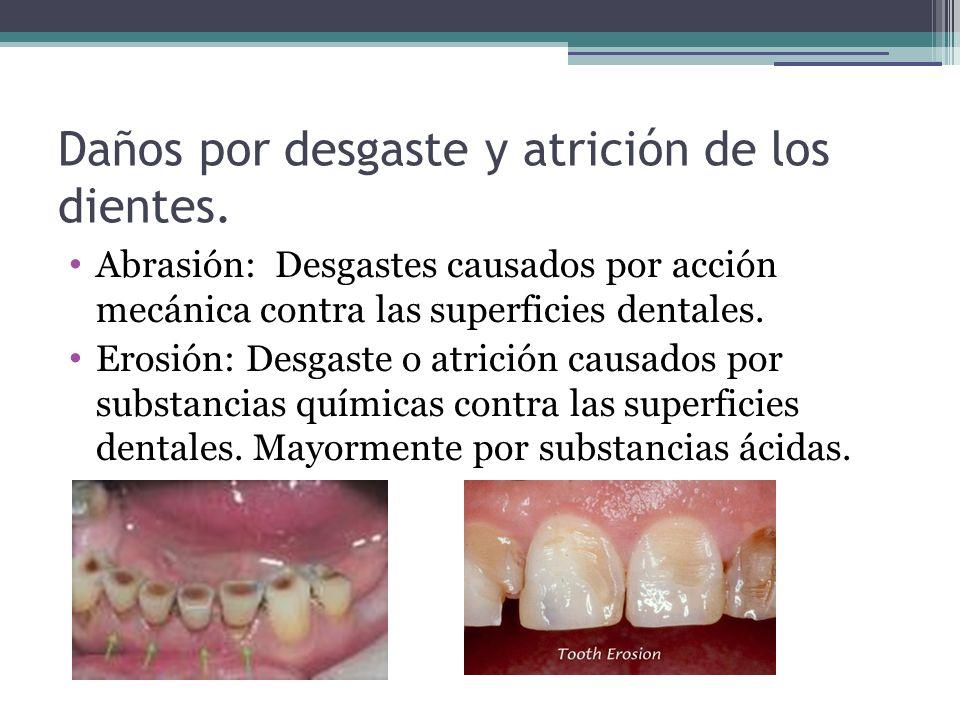 Daños por desgaste y atrición de los dientes.