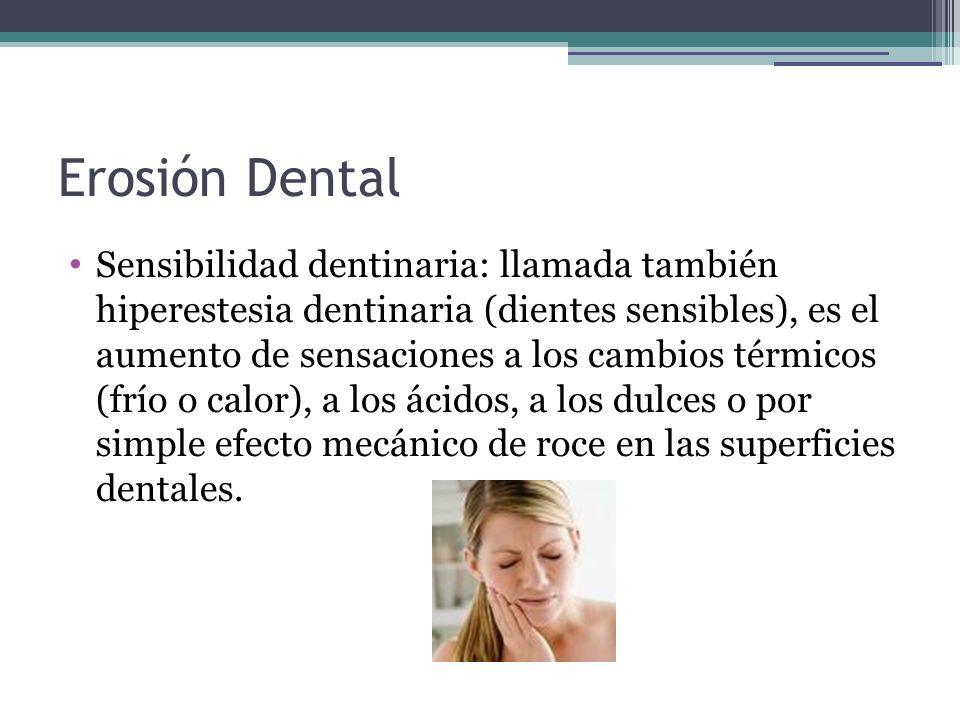 Erosión Dental