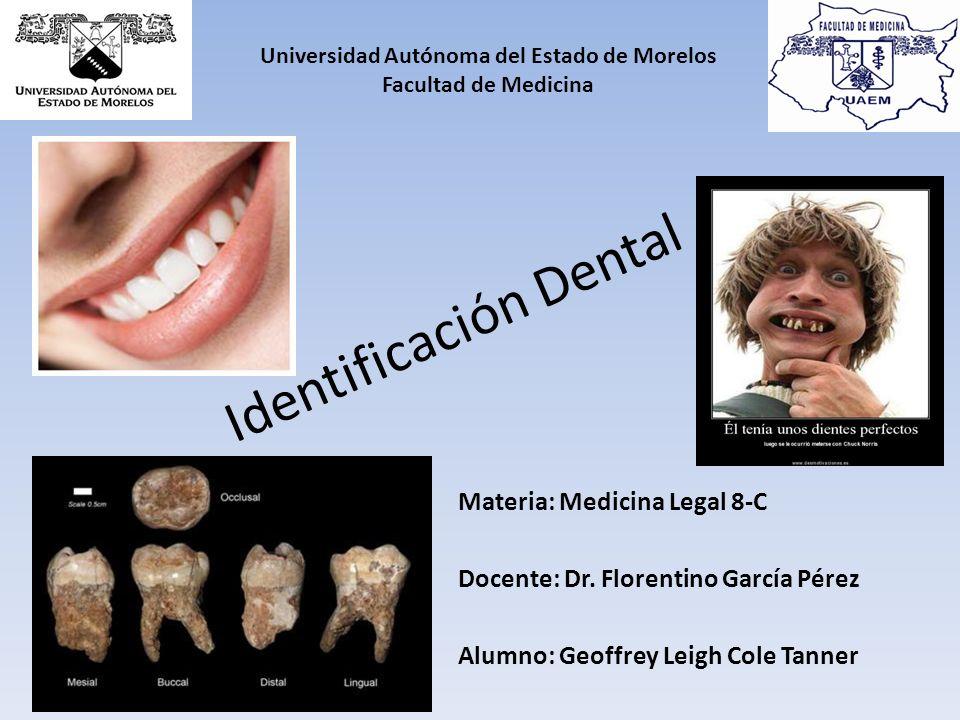 Identificación Dental