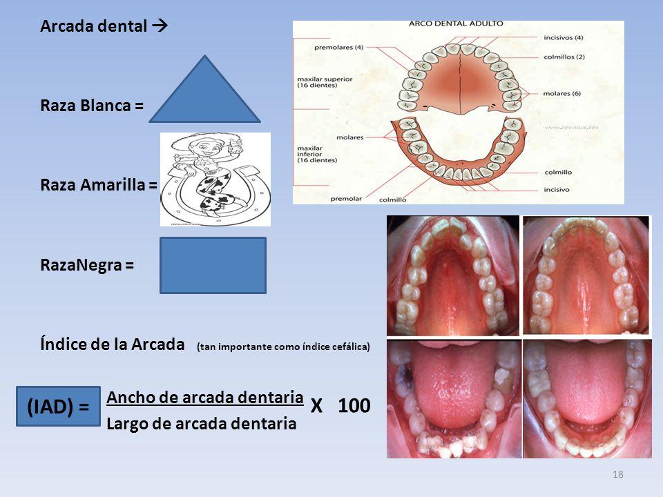 Arcada dental  Raza Blanca = Raza Amarilla = RazaNegra = Índice de la Arcada (tan importante como índice cefálica) Ancho de arcada dentaria Largo de arcada dentaria