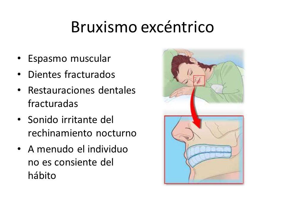 Bruxismo excéntrico Espasmo muscular Dientes fracturados
