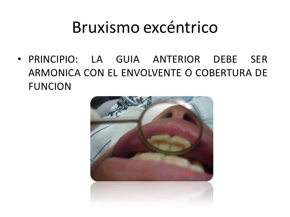 Bruxismo excéntrico PRINCIPIO: LA GUIA ANTERIOR DEBE SER ARMONICA CON EL ENVOLVENTE O COBERTURA DE FUNCION.