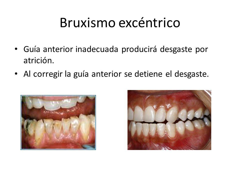 Bruxismo excéntrico Guía anterior inadecuada producirá desgaste por atrición.