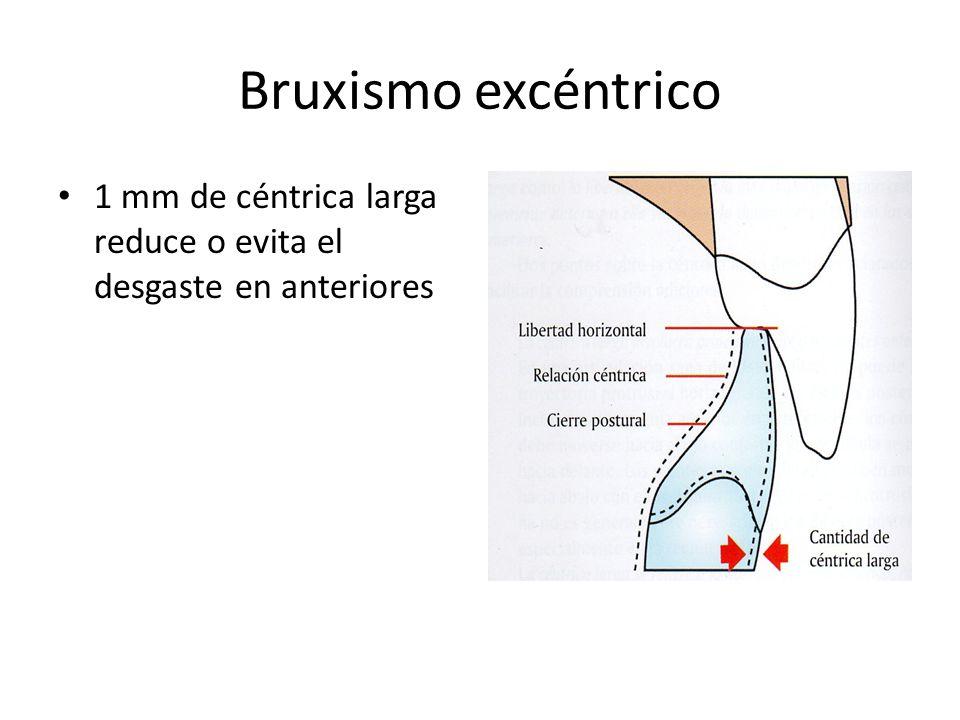 Bruxismo excéntrico 1 mm de céntrica larga reduce o evita el desgaste en anteriores
