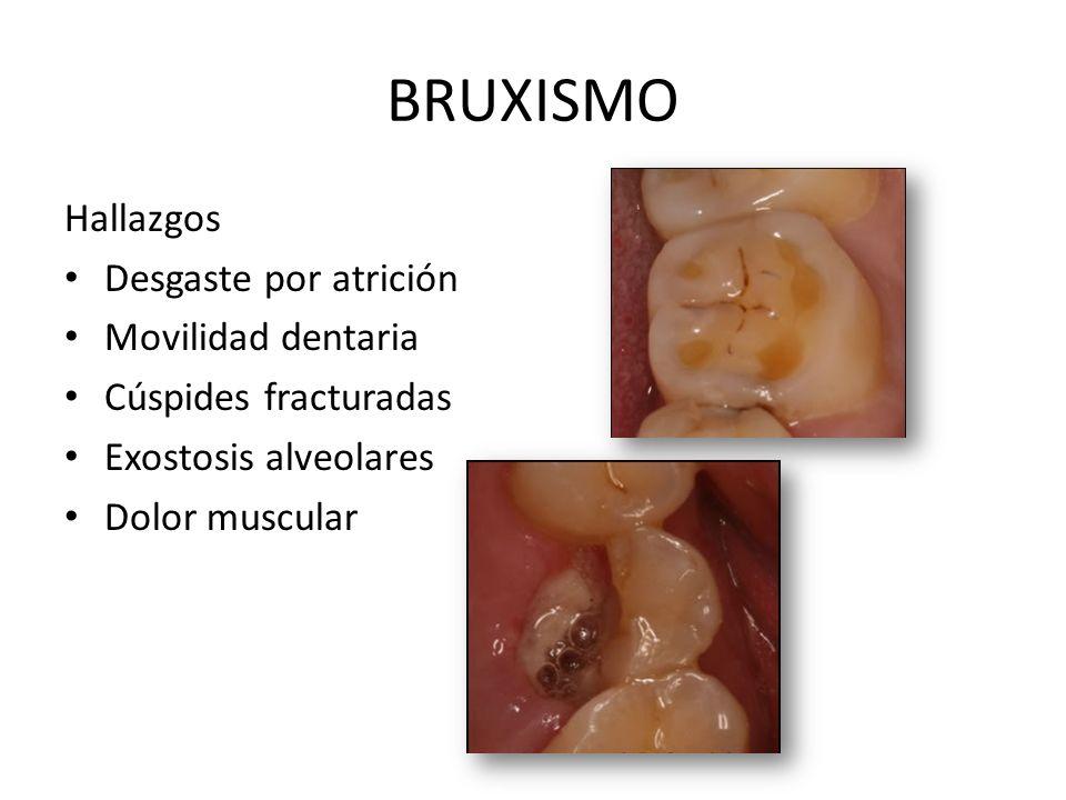 BRUXISMO Hallazgos Desgaste por atrición Movilidad dentaria
