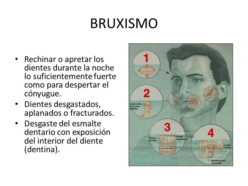 BRUXISMO Rechinar o apretar los dientes durante la noche lo suficientemente fuerte como para despertar el cónyugue.