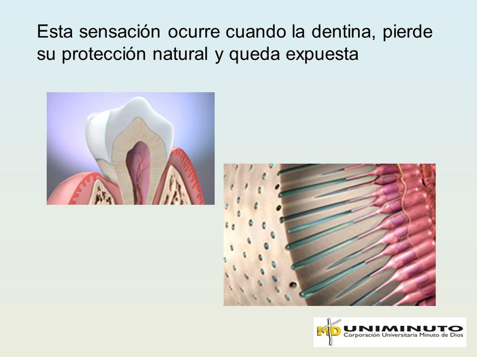 Esta sensación ocurre cuando la dentina, pierde su protección natural y queda expuesta