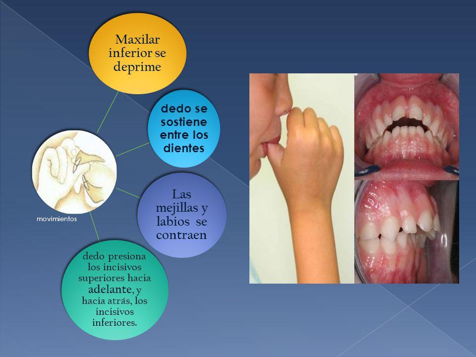 Maxilar inferior se deprime Las mejillas y labios se contraen