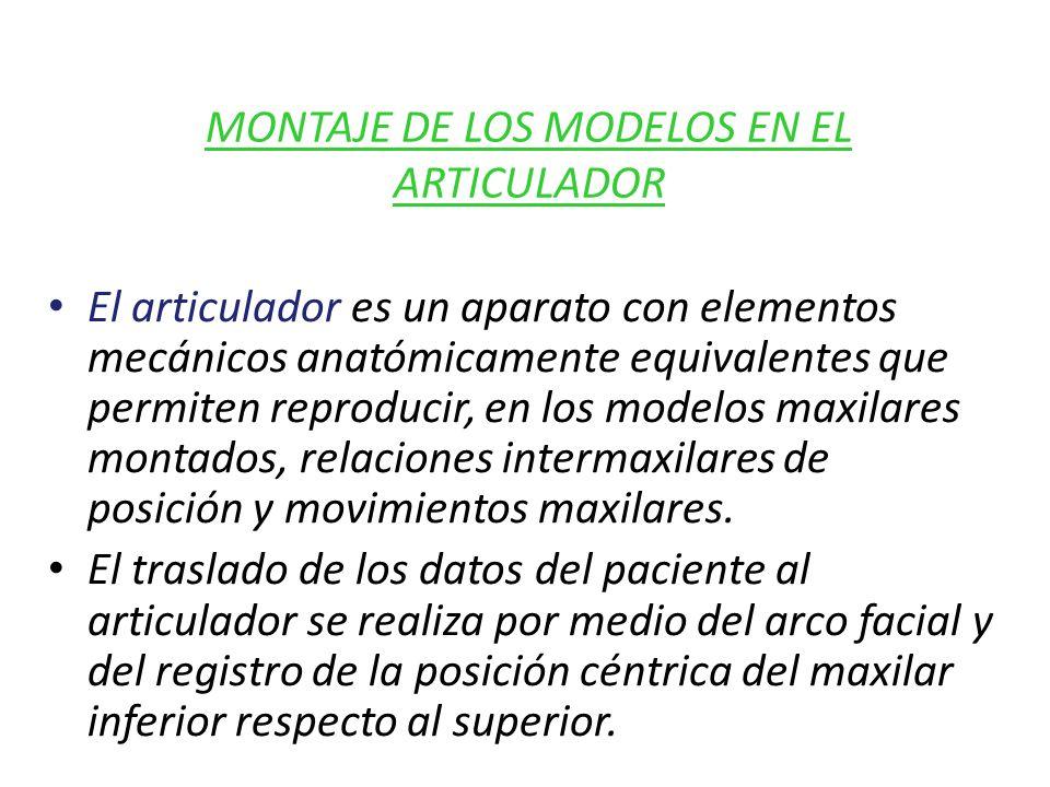 MONTAJE DE LOS MODELOS EN EL ARTICULADOR