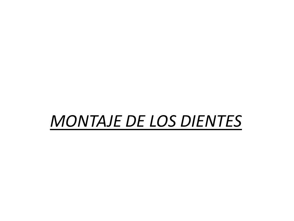 MONTAJE DE LOS DIENTES