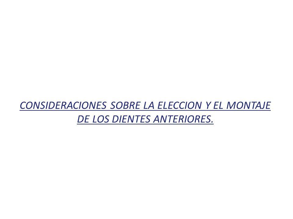 CONSIDERACIONES SOBRE LA ELECCION Y EL MONTAJE DE LOS DIENTES ANTERIORES.