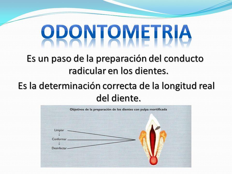 ODONTOMETRIA Es un paso de la preparación del conducto radicular en los dientes.