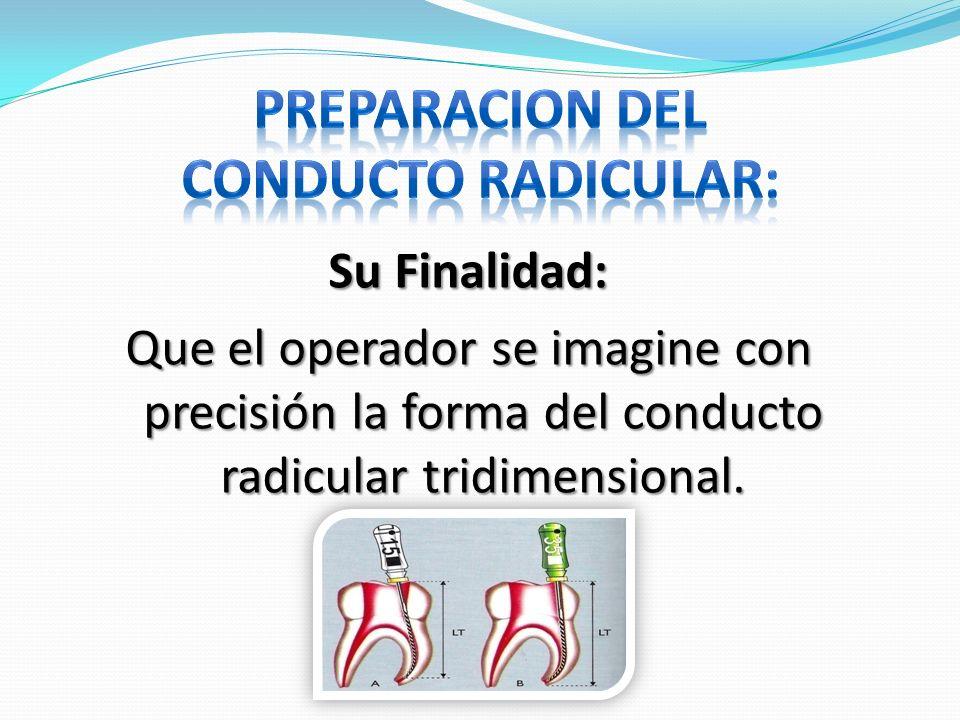 PREPARACION DEL CONDUCTO RADICULAR: