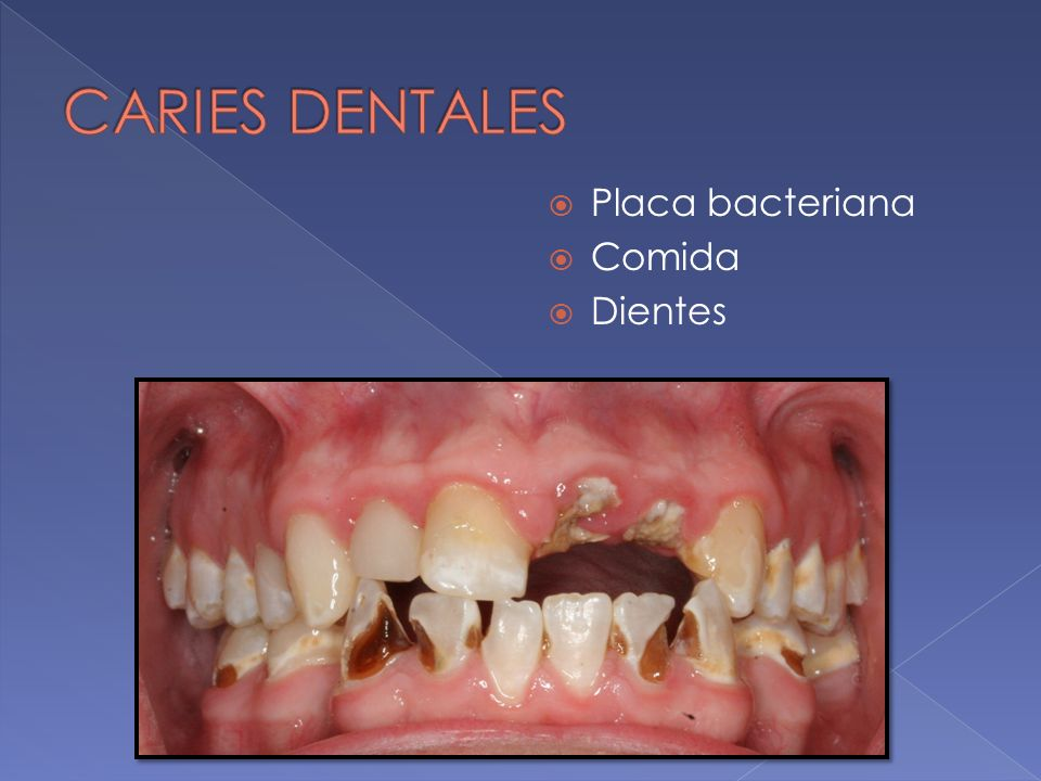CARIES DENTALES Placa bacteriana Comida Dientes