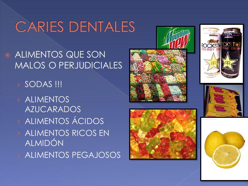 CARIES DENTALES ALIMENTOS QUE SON MALOS O PERJUDICIALES SODAS !!!