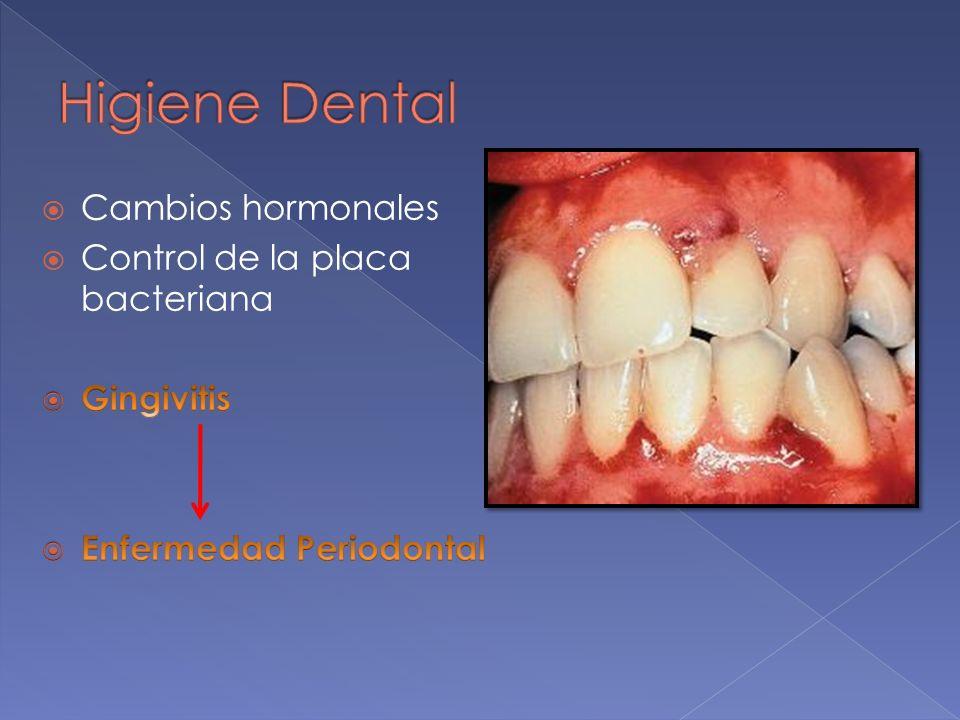 Higiene Dental Cambios hormonales Control de la placa bacteriana