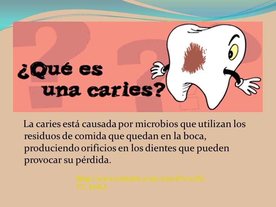 La caries está causada por microbios que utilizan los residuos de comida que quedan en la boca, produciendo orificios en los dientes que pueden provocar su pérdida.