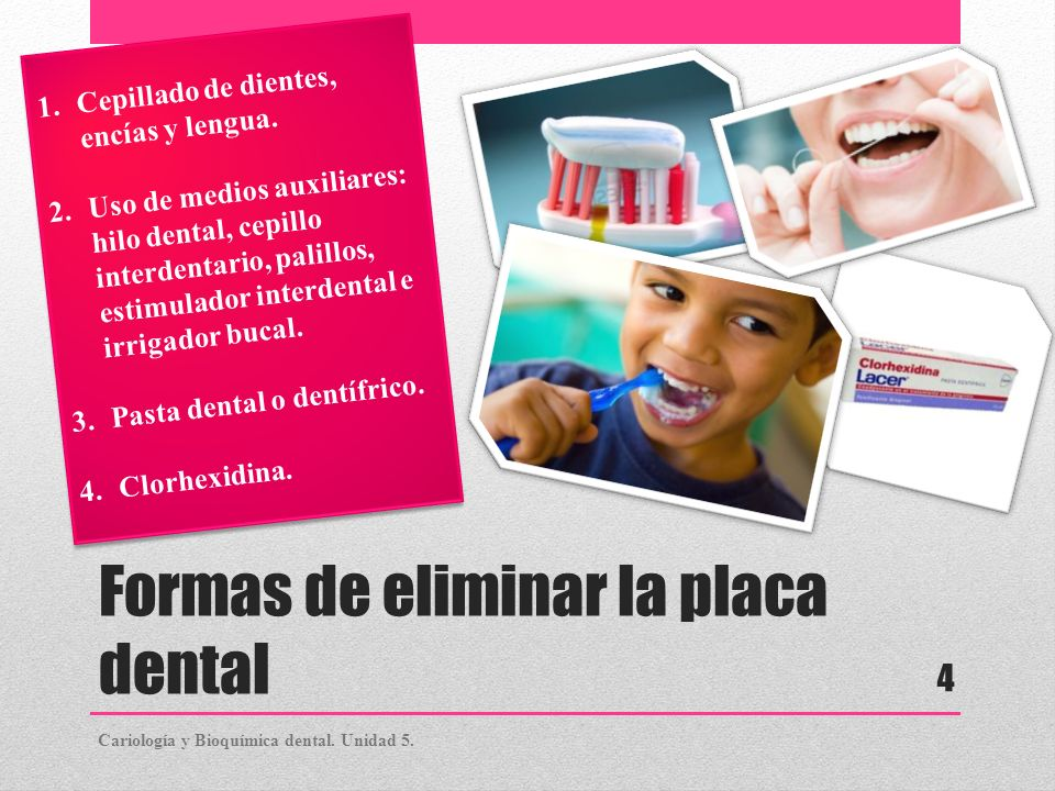 Formas de eliminar la placa dental