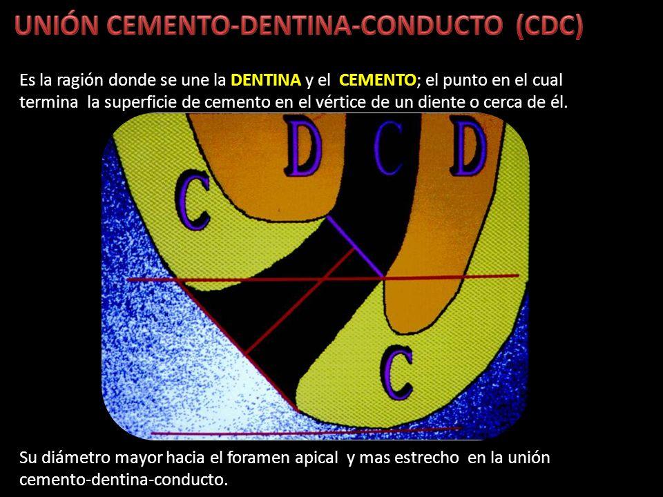 UNIÓN CEMENTO-DENTINA-CONDUCTO (CDC)