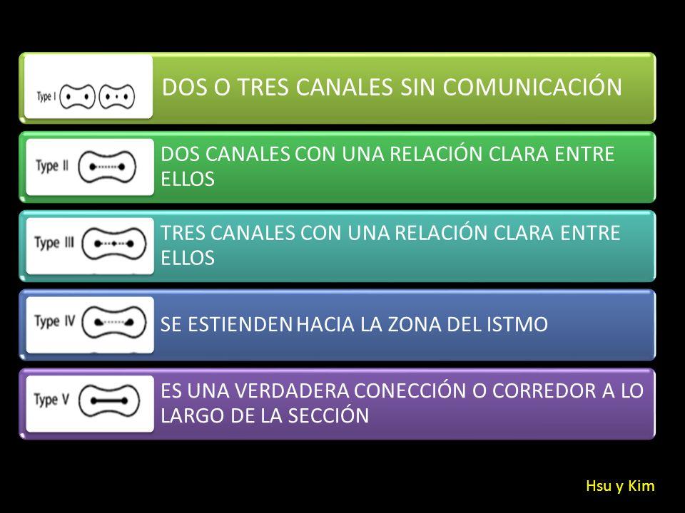 DOS O TRES CANALES SIN COMUNICACIÓN