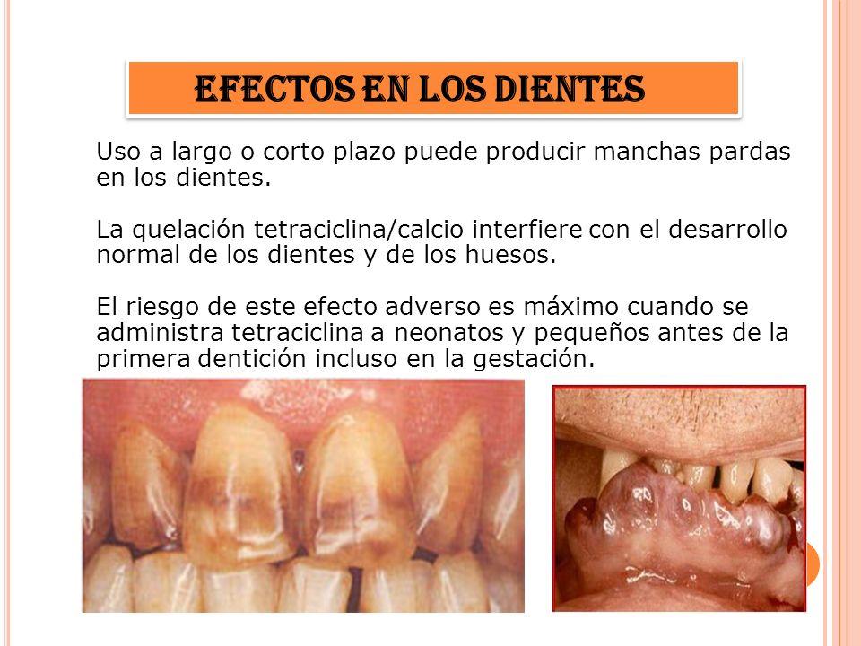 Efectos en los dientes Uso a largo o corto plazo puede producir manchas pardas en los dientes.