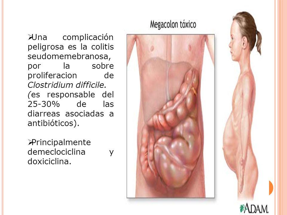 Una complicación peligrosa es la colitis seudomemebranosa, por la sobre proliferacion de Clostridium difficile.