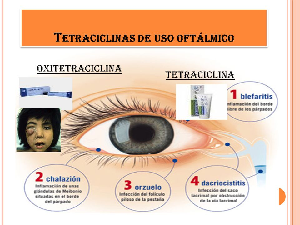 Historia tetraciclinas historia ppt descargar for Uso esterno oftalmico