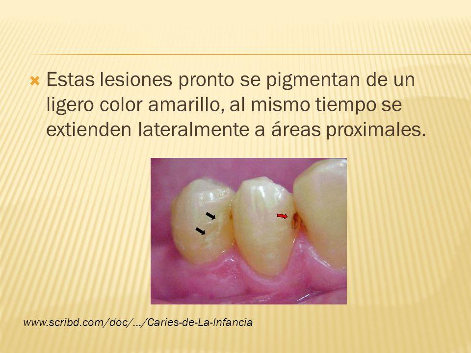Estas lesiones pronto se pigmentan de un ligero color amarillo, al mismo tiempo se extienden lateralmente a áreas proximales.