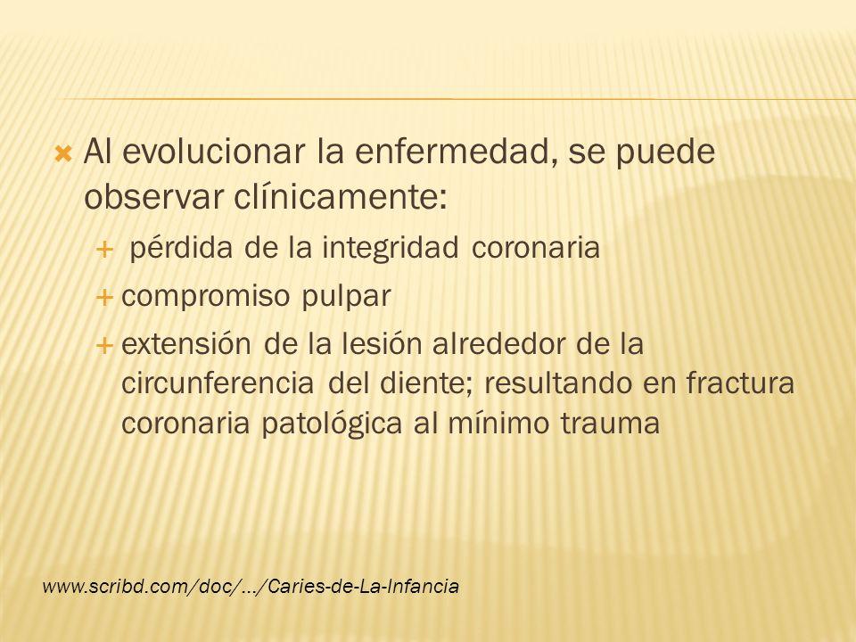 Al evolucionar la enfermedad, se puede observar clínicamente: