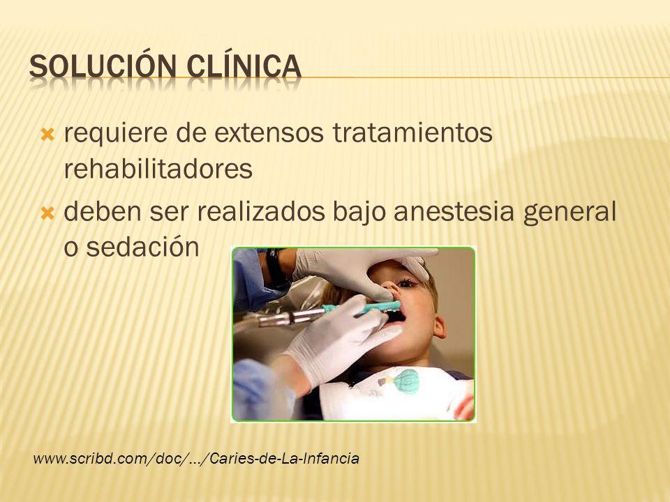 solución clínica requiere de extensos tratamientos rehabilitadores