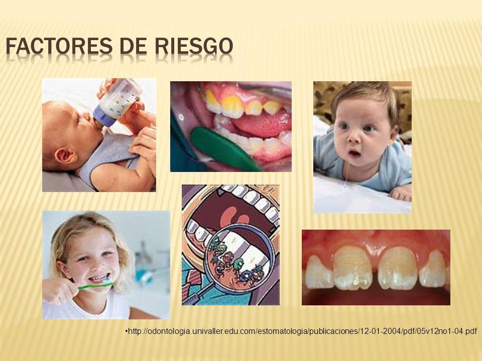 Factores de Riesgo http://odontologia.univaller.edu.com/estomatologia/publicaciones/12-01-2004/pdf/05v12no1-04.pdf.