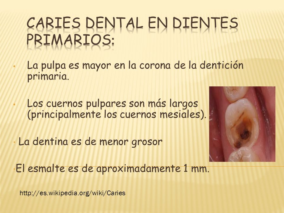 Caries dental en dientes primarios: