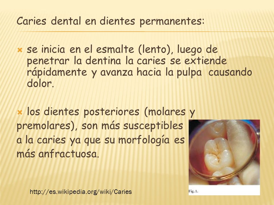Caries dental en dientes permanentes: