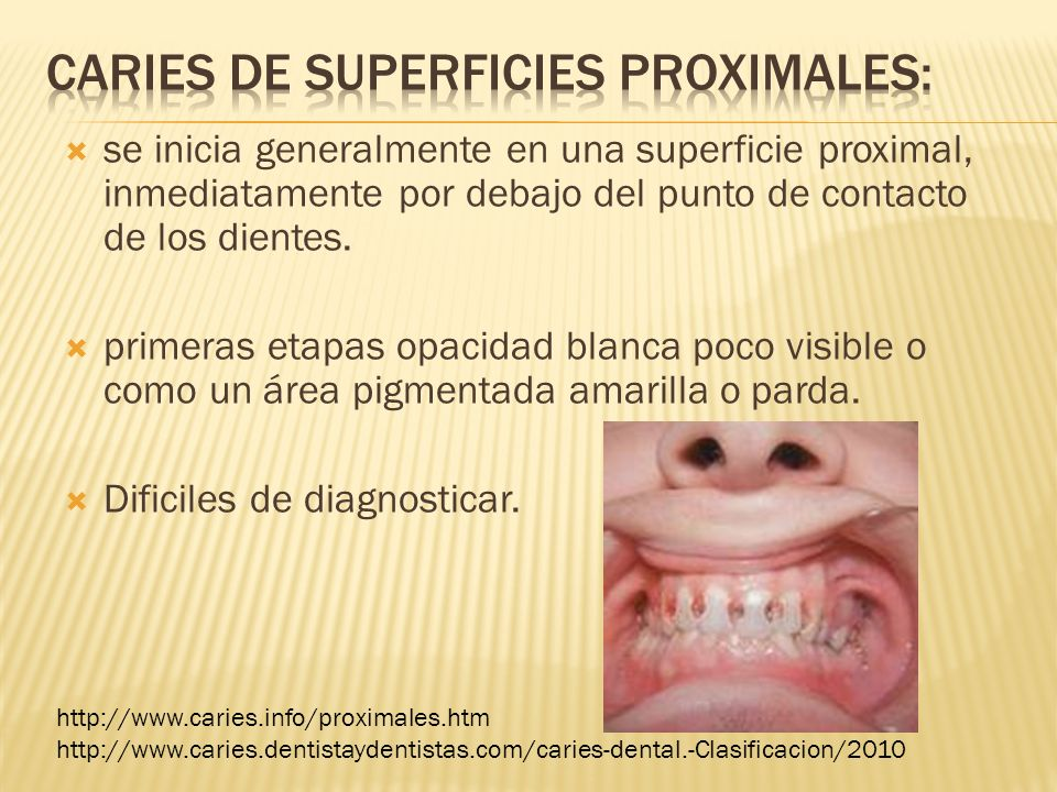 Caries de superficies proximales: