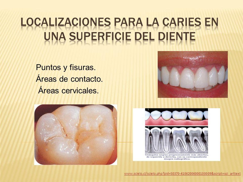 localizaciones para la caries en una superficie del diente