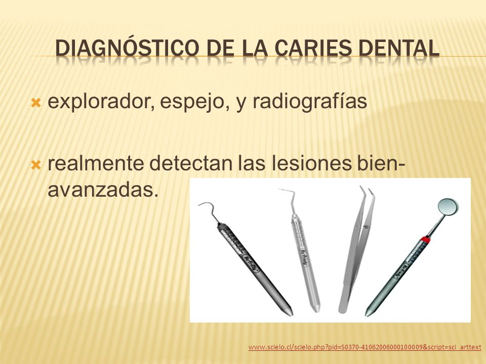 Diagnóstico de la caries dental