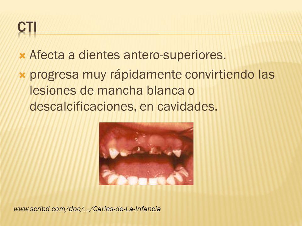 CTI Afecta a dientes antero-superiores.