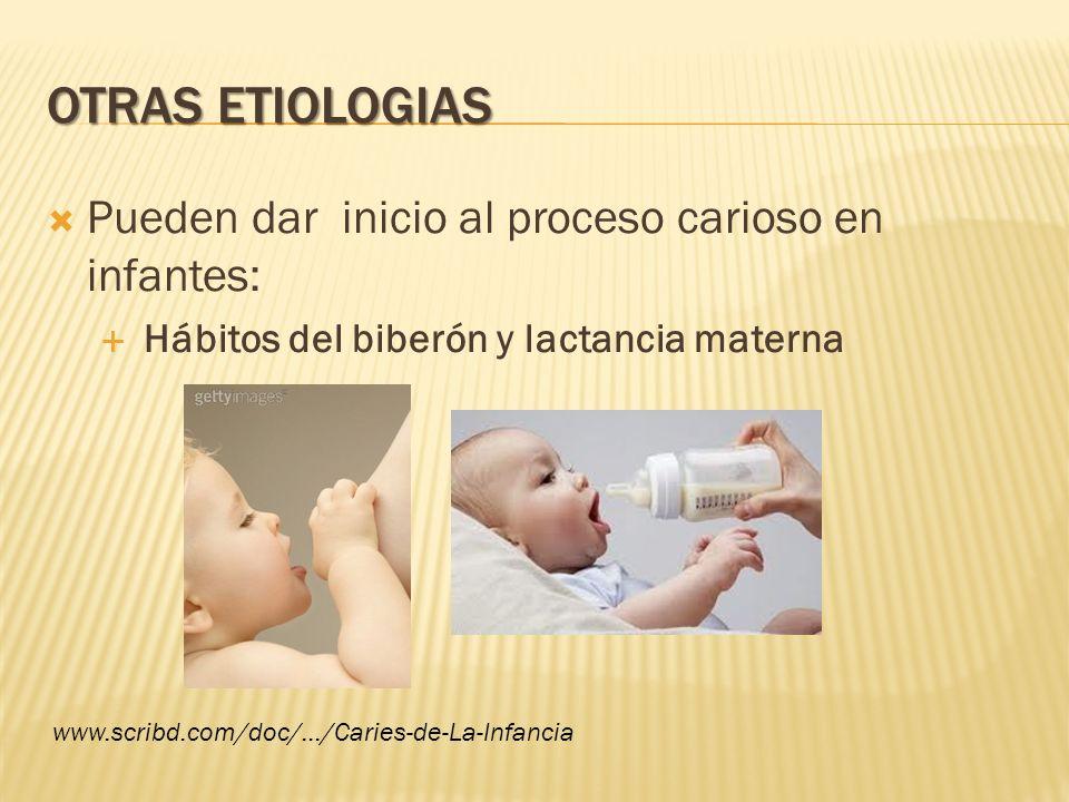 Otras etiologias Pueden dar inicio al proceso carioso en infantes:
