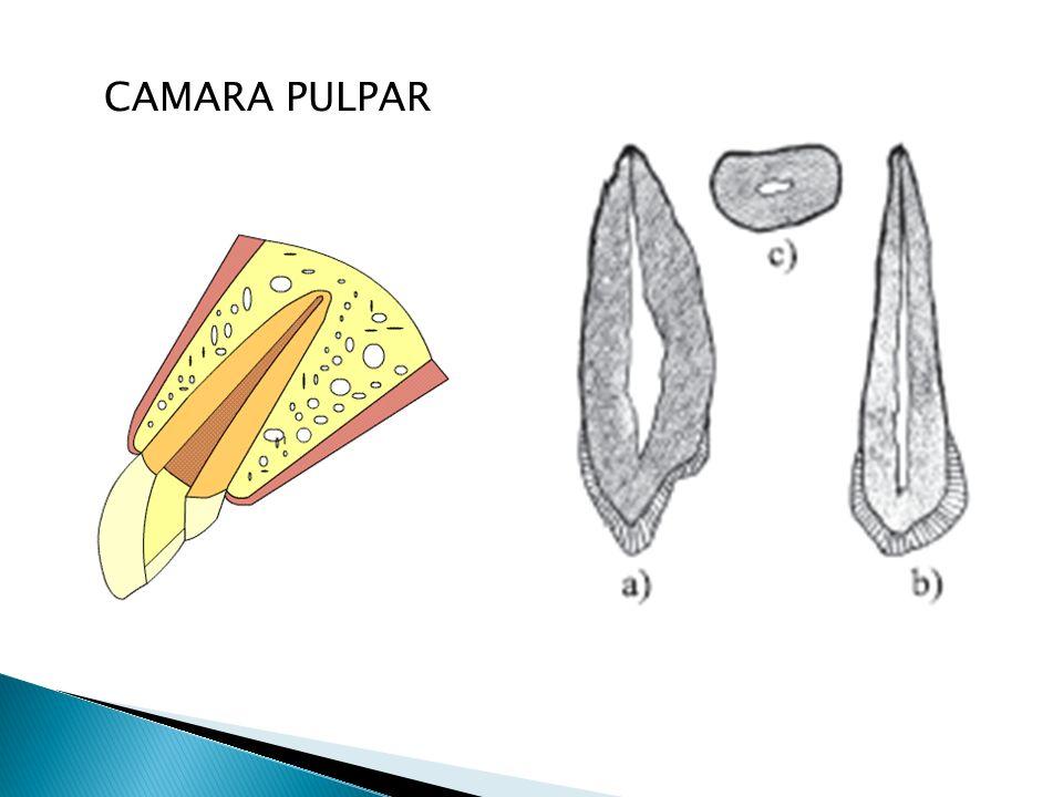 CAMARA PULPAR