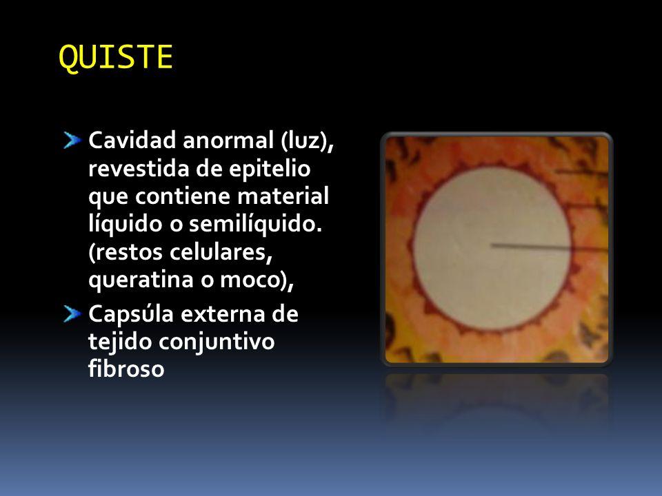 QUISTE Cavidad anormal (luz), revestida de epitelio que contiene material líquido o semilíquido. (restos celulares, queratina o moco),