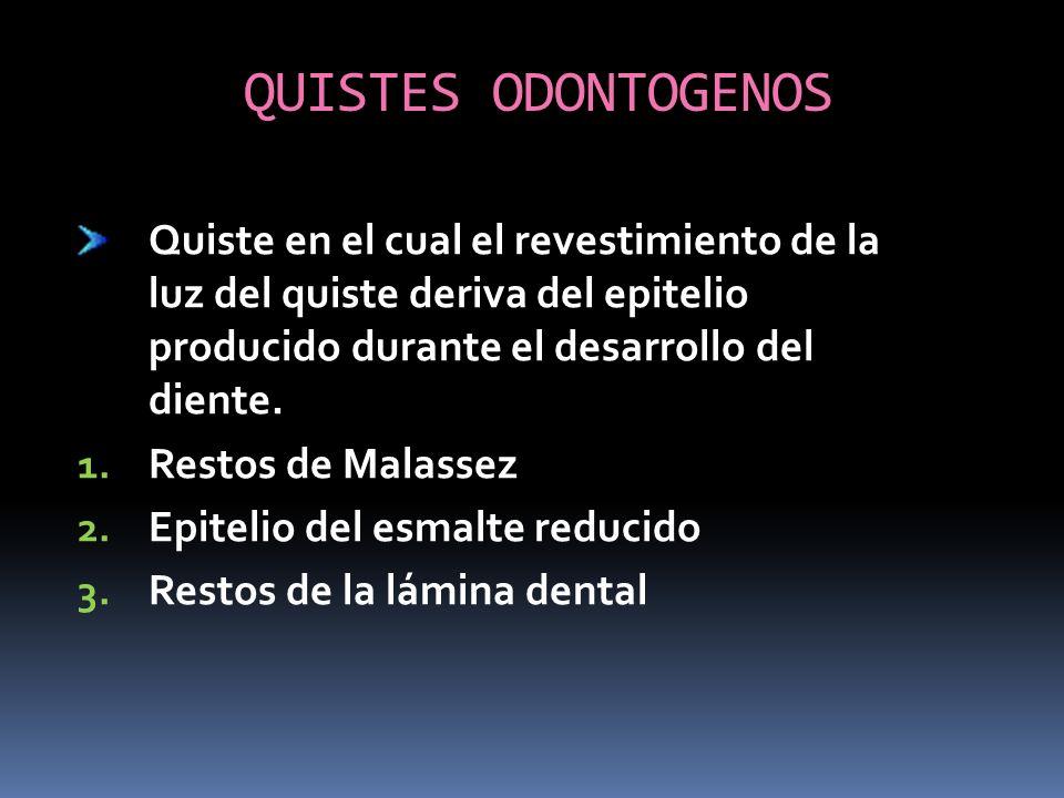 QUISTES ODONTOGENOS Quiste en el cual el revestimiento de la luz del quiste deriva del epitelio producido durante el desarrollo del diente.