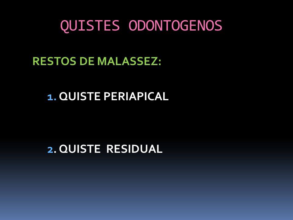 QUISTES ODONTOGENOS RESTOS DE MALASSEZ: 1. QUISTE PERIAPICAL