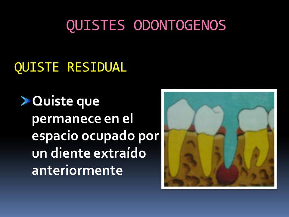 QUISTES ODONTOGENOS QUISTE RESIDUAL