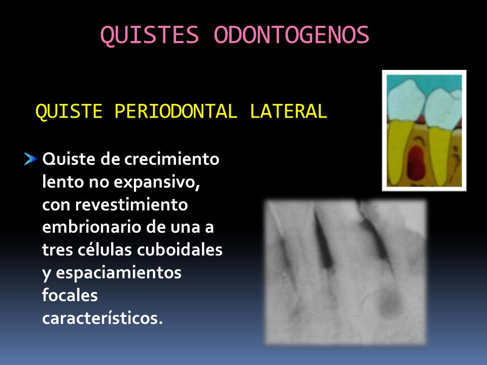 QUISTES ODONTOGENOS QUISTE PERIODONTAL LATERAL