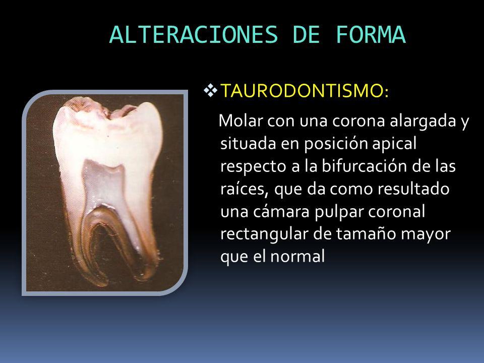 ALTERACIONES DE FORMA TAURODONTISMO: